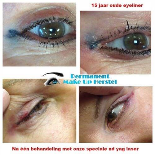 15 jaar oude blauwe eyeliner weg laseren