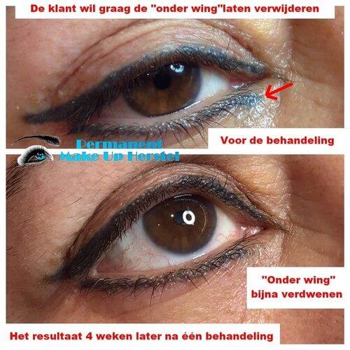 De Eyeliner onder de wing verwijderen met de laser