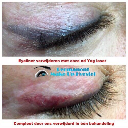 De eyeliner compleet verwijderen met de nd yag laser