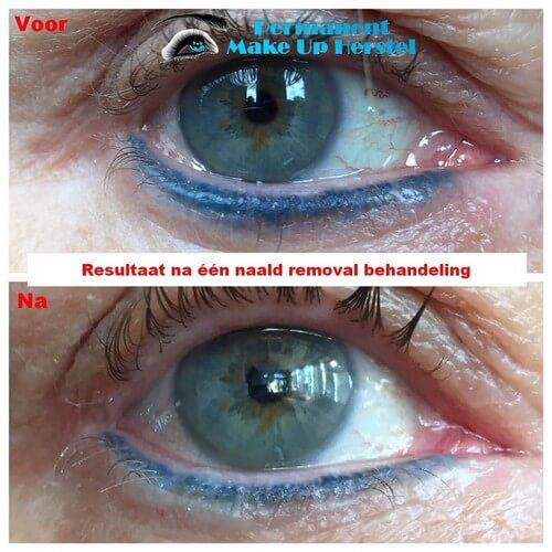Eyeliner lichter maken met de naald removal techniek