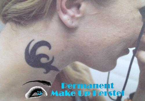 Tattoo verwijderen in de nek 1